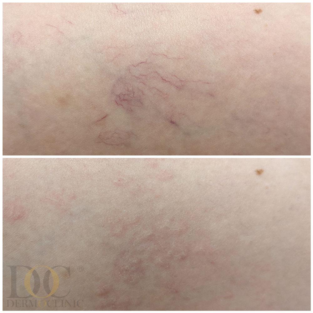 Laserowe-usuwanie-rozszerzonych-naczyń-krwionośnych.-Luxor-Beauty-Laser..